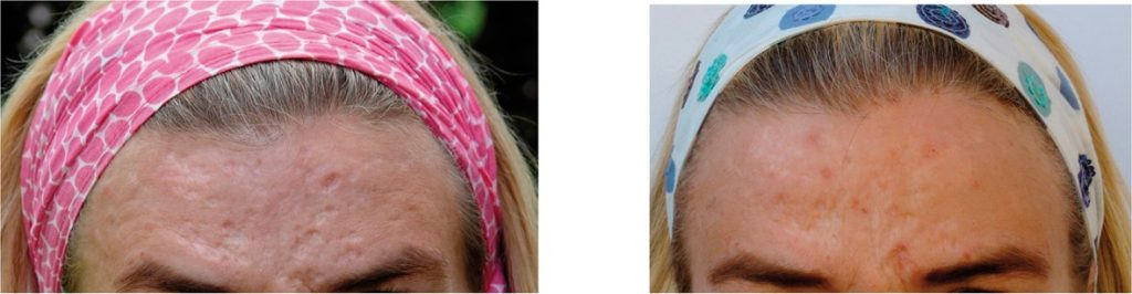 Dermaroller treatment for acne on the forehead
