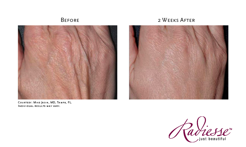 Radiesse used to smooth hands